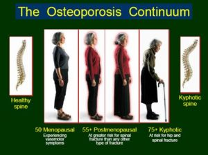 εξέλιξη οστεοπόρωσης