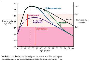 οστεοπόρωση ηλικία